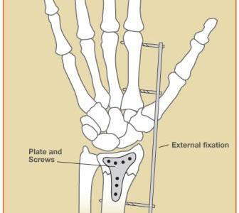 Wrist (Distal Radius) Fractures