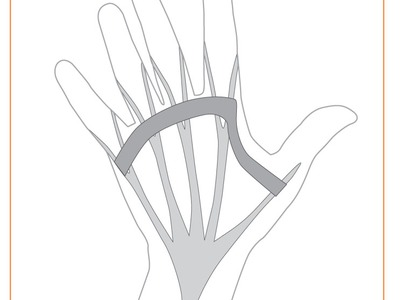 Dupuytrens Contracture Procedures