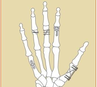 Hand Fracture Procedures