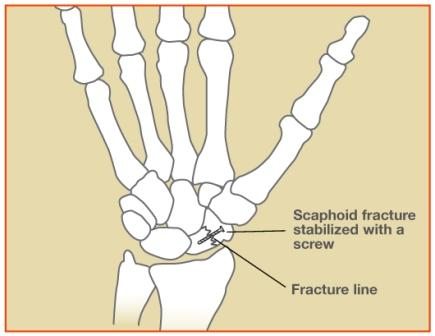 Scaphoid Fracture Procedures