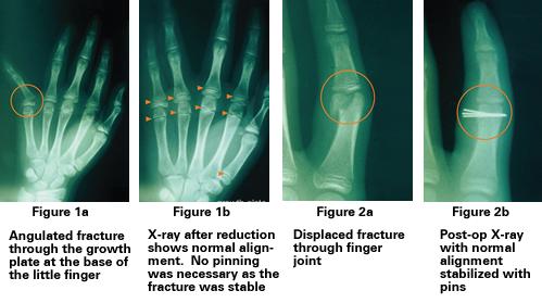 common types of fractures in children
