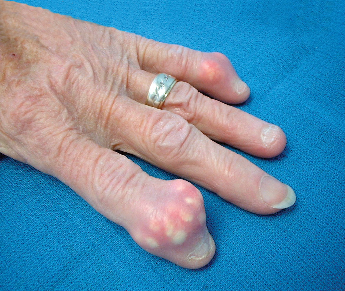 Gout image with tophus formation