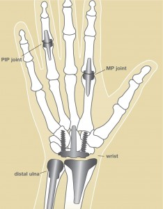 Image of Joint replacement implants