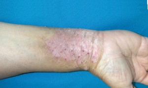 Image of scaly red patches on skin at wrist