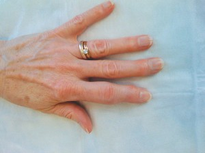 Image showing sausage finger with swelling on the middle joint