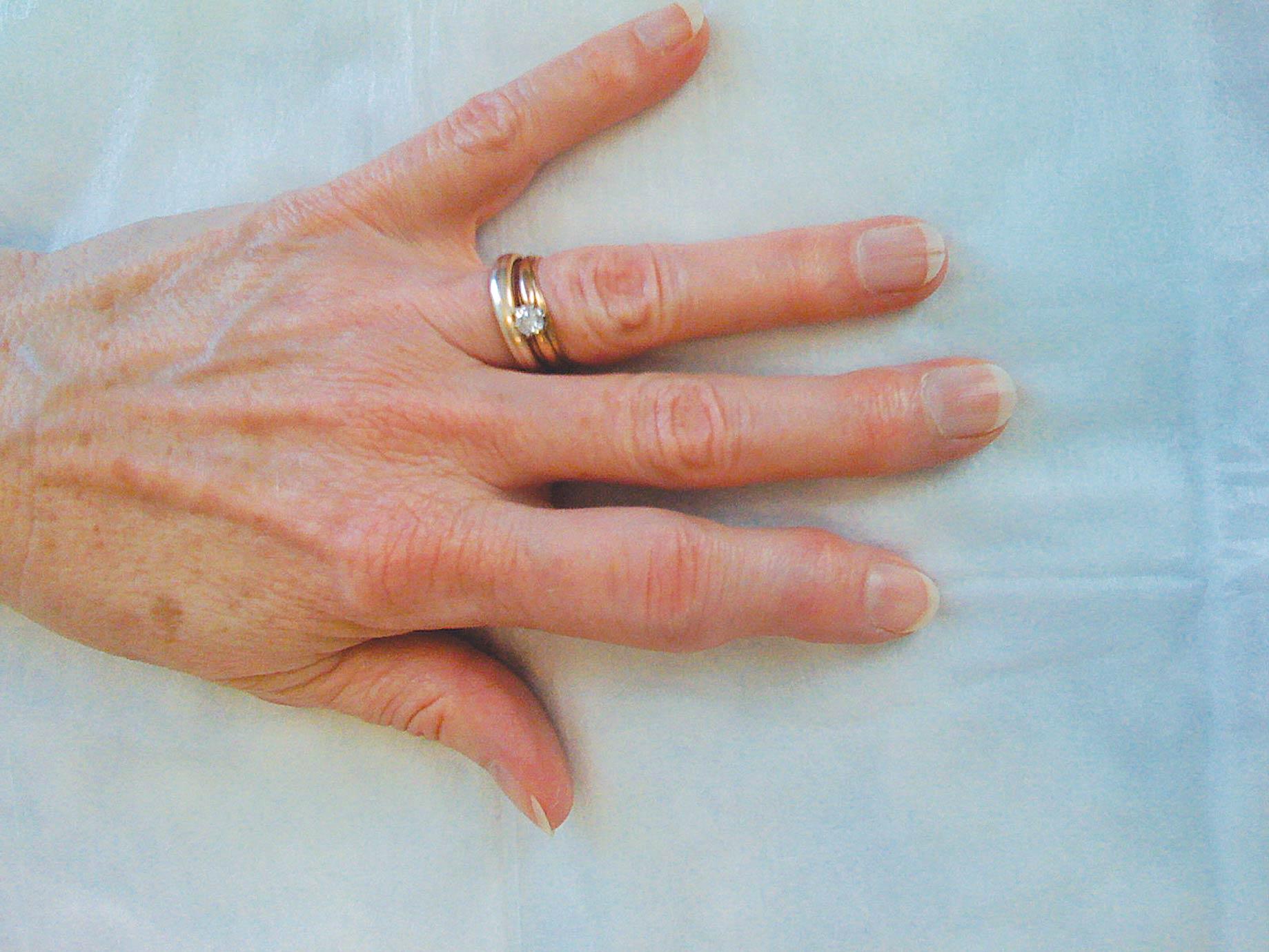 К какому врачу пойти с ногтями
