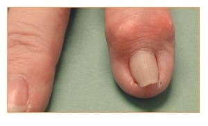 Image of deformity and enlargement of the small finger joint