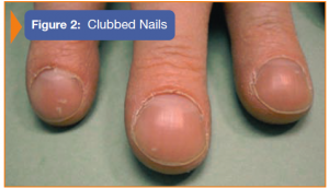 Image of clubbed nails