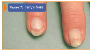 Image showing Terry's Nails