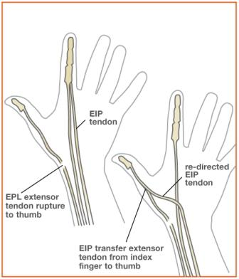 Image showing tendons on hand