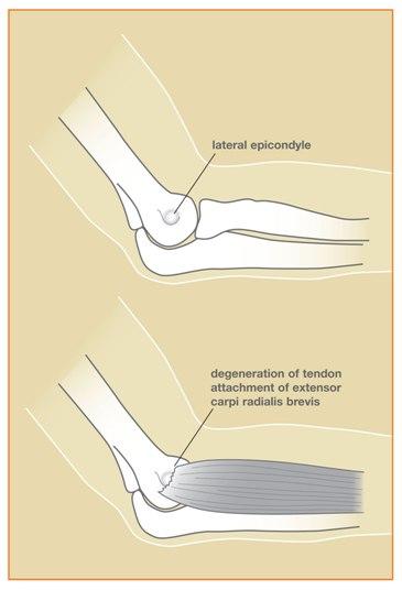 Tennis Elbowlateral Epicondylitis