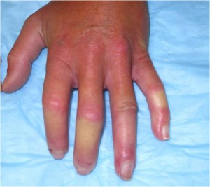 Image of cold hand