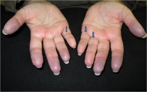 Image of warmed up hands