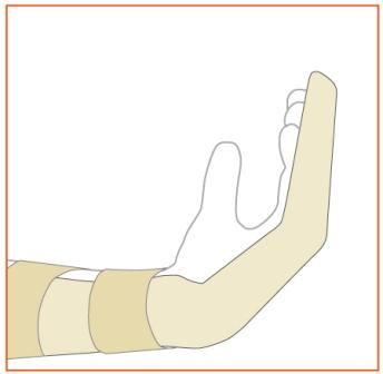 Image showing bandaging after surgery
