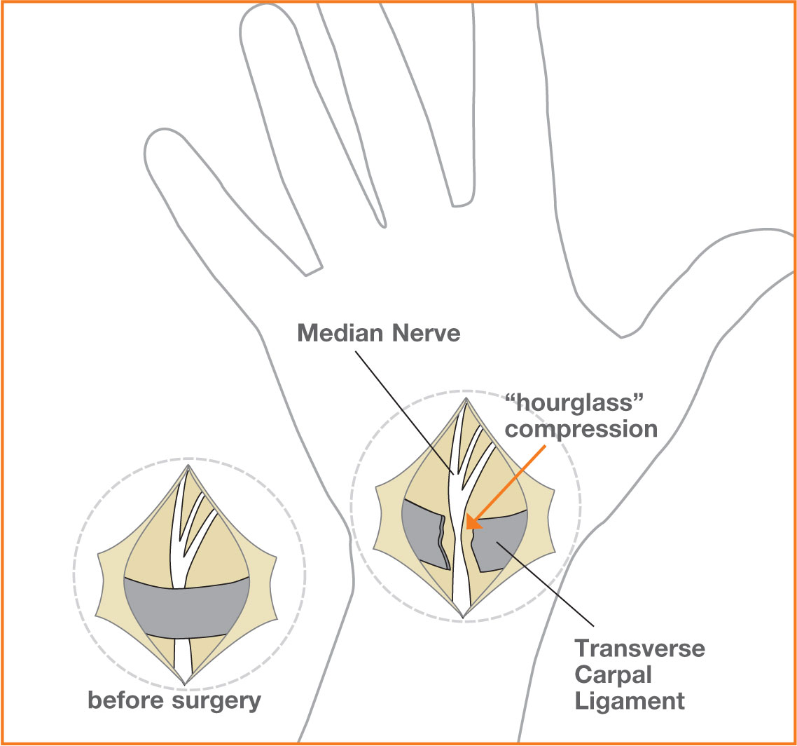 A diagram showing freeing the ligament by surgery