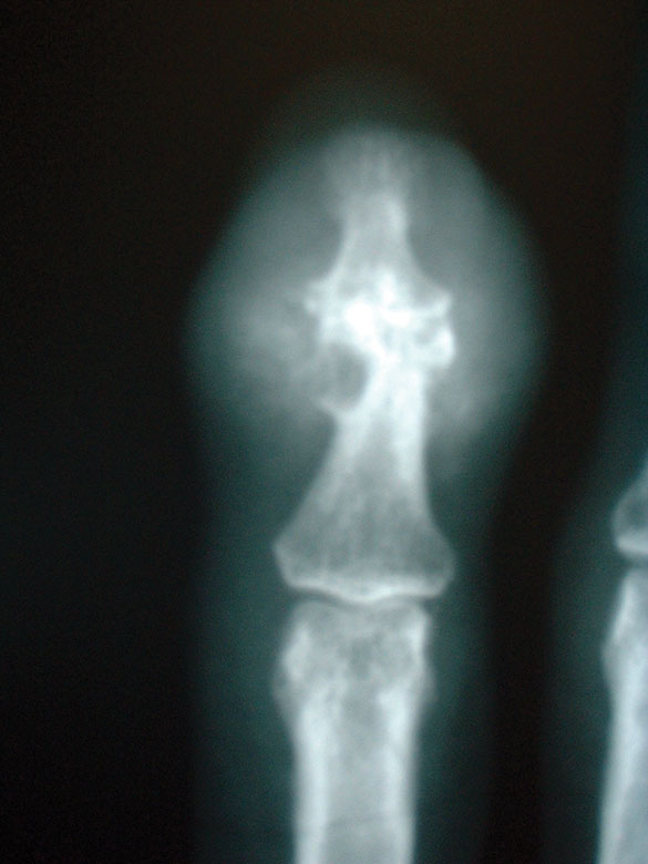 X-ray of finger with longstanding gout