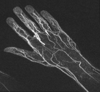 Angiography (MRA) of the hand